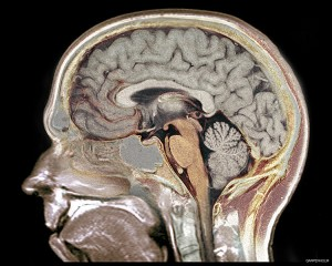 """""""What part of the brain is the most active when someone is under stress or pressure? why?"""" See student question. Image by Garpenholm"""